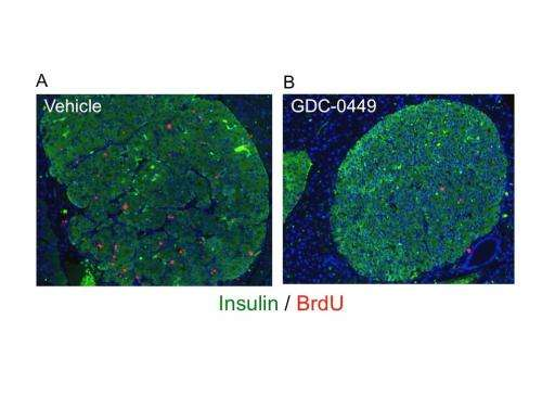 Researchers discover link between inherited endocrine tumor syndrome and well studied cell pathway