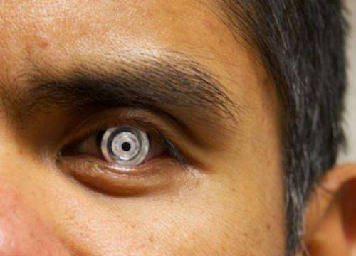 Telescopic contact lens could improve eyesight for the visually impaired