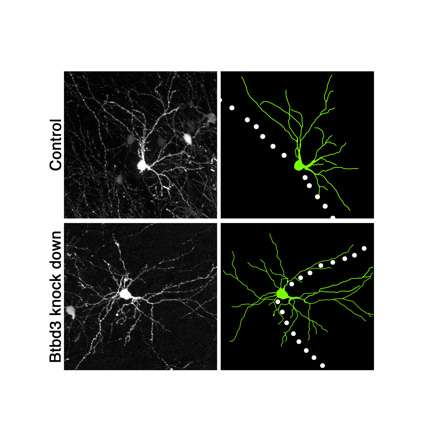Researchers identify molecule that orients neurons for high definition sensing