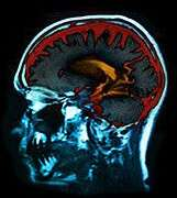 Researchers test implanted brain stimulator for alzheimer's