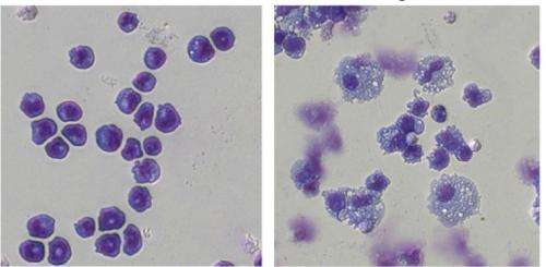 Scientists discover how leukemia cells exploit 'enhancer' DNA elements to cause lethal disease
