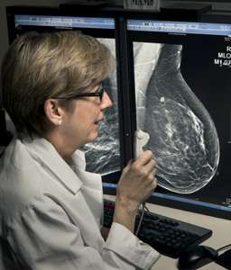 3D mammography increases cancer detection and reduces call-back rates, Penn study finds