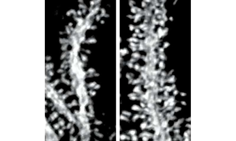 New insights into control of neuronal circuitry could lead to treatments for an inherited motor disorder