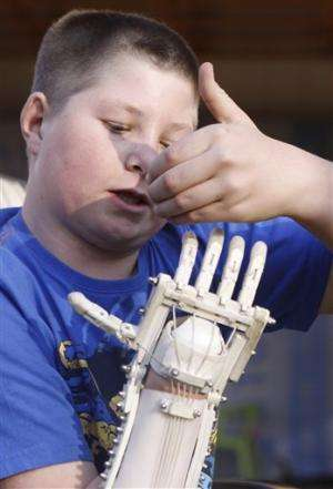 Robohand uses 3D printing to replace lost digits