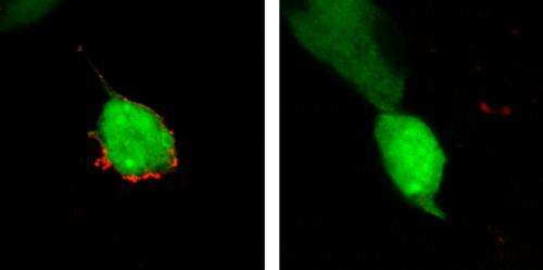 A gene responsible for building neural circuitry contributes to proper development of both the eye and ear