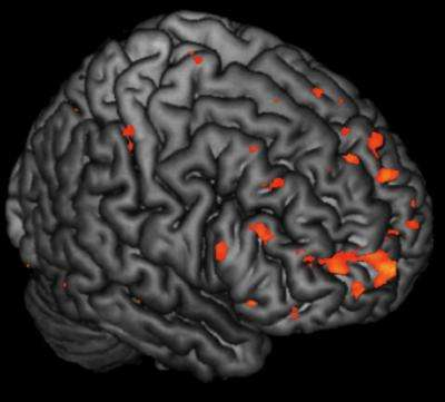 Alterations in brain activity in children at risk of schizophrenia predate onset of symptoms
