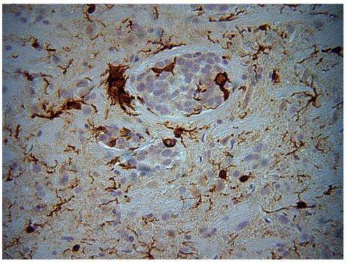 Blunting brain tumor growth with immune activation