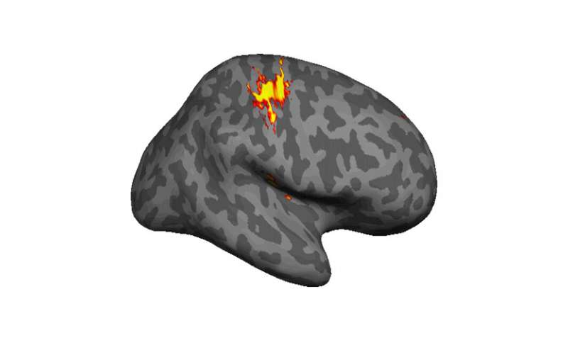Amputee phantom pain linked to brain retaining picture of missing limb