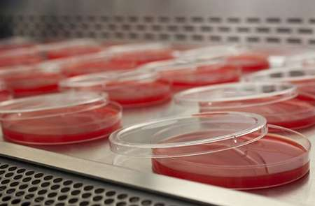Analysing meningitis genes to identify new treatments