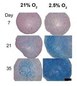 Better cartilage repairs using stem cells