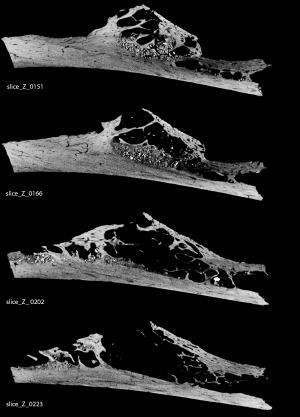 Bone tumor in 120,000-year-old Neandertal discovered