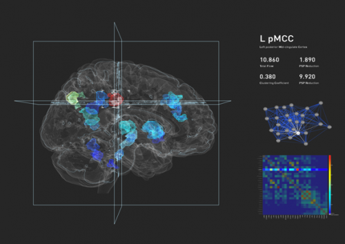 Brain visualization prototype holds promise for precision medicine