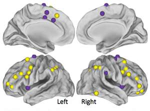 'Chemobrain' linked to disrupted brain networks