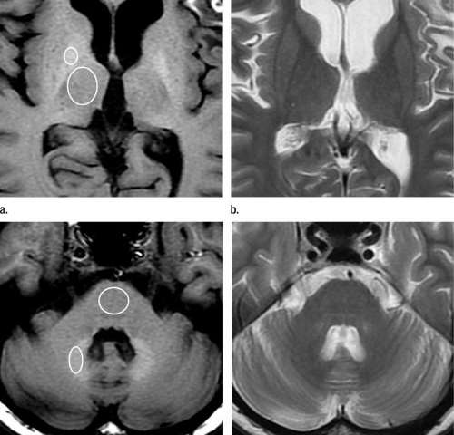 Contrast agent linked with brain abnormalities on MRI