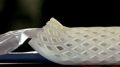 Curvy plastic tube fights obesity, no surgery required