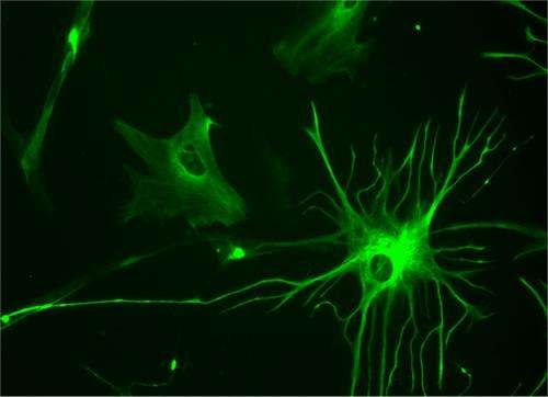 Discovery that some seizures arise in glial cells could offer new targets for epilepsy treatment
