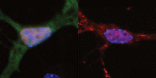 DNA damage may cause ALS