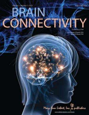 Do disruptions in brain communication have a role in autism?