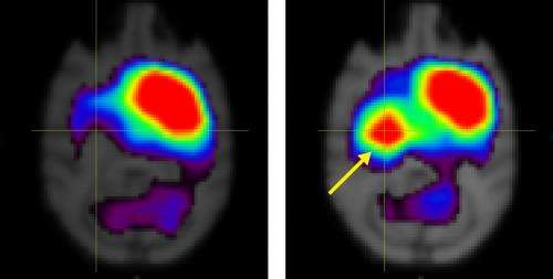 Dopamine-producing neurons derived from bone marrow stem cells yield improvements in monkeys with Parkinson's disease