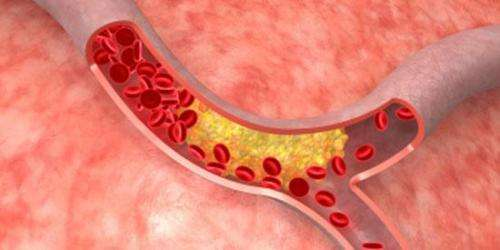 Dramatic new cholesterol guidelines