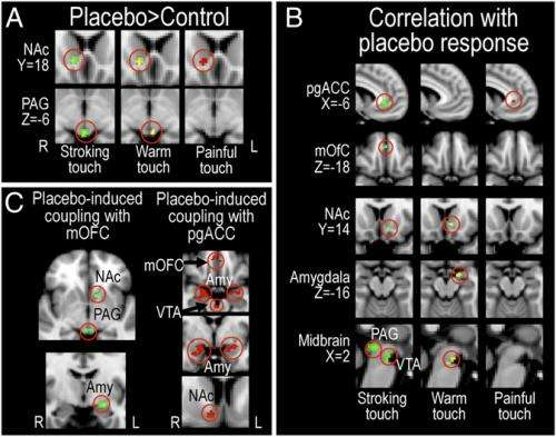Mind over gray matter: Placebo improves both pleasure and pain
