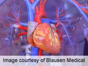 Fetuin-A levels linked to cardiovascular disease risk