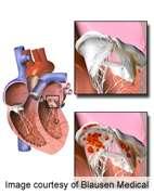 High burden of endocarditis in older adults