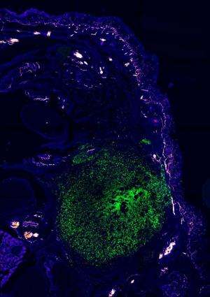 Bacteria make us feel pain… and suppress our immune response