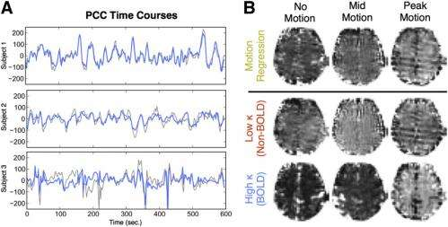 Improving our image: Motion-tolerant BOLD fMRI improves signal-to-noise, functional connectivity analysis and statistica