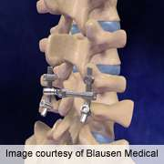 Low vitamin D levels common among spinal fusion patients