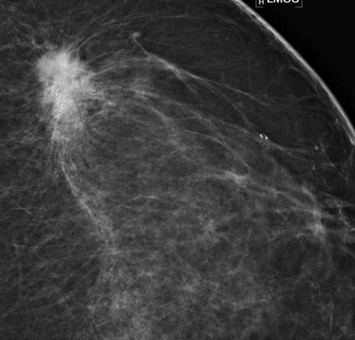 Mammography Screening Intervals May Affect Breast Cancer Prognosis