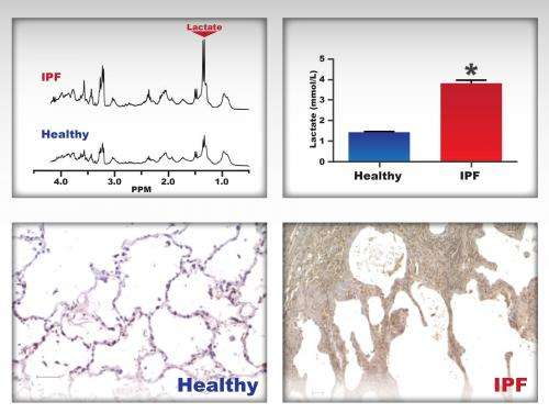 Metabolomics key to identifying disease pathway: Research reveals lactic acid's role in lung disease