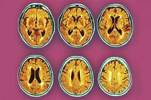 Mild B-12 deficiency may speed dementia