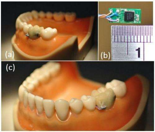 Team develops tooth embedded sensor for oral activity recognition