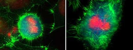 Scientists study transient degradation of an actin regulator