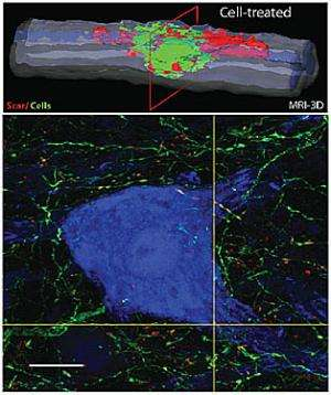 Stem cell injections improve spinal injuries in rats