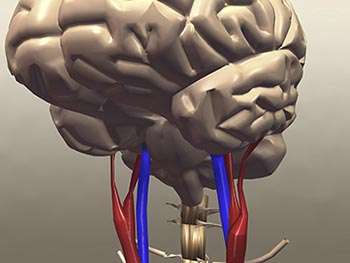 Stroke mortality is down, but the reason remains a mystery