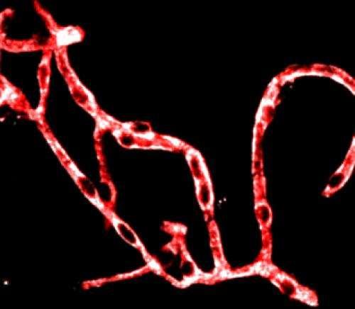 Study breaks blood-brain barriers to understanding Alzheimer's