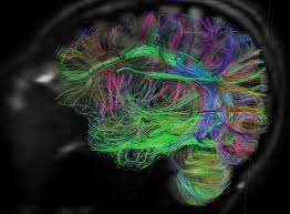 The brain is alive, will new MRI diffusion techniques let us see it move and shake?