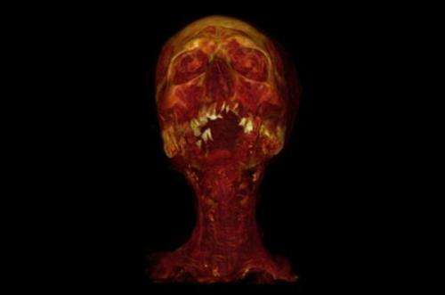 This CT with 3D volume rendering shows Hatiay, a mummified male Egyptian scribe aged 40-50 who lived in 1570-1293 BCE