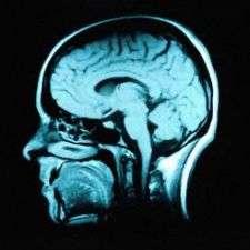 Toward a molecular explanation for schizophrenia