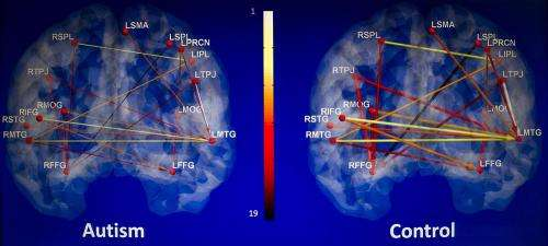 Research finds brain scans may aid in diagnosis of autism
