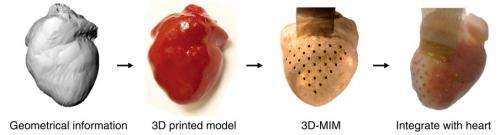 3-D heart sock could replace pacemaker