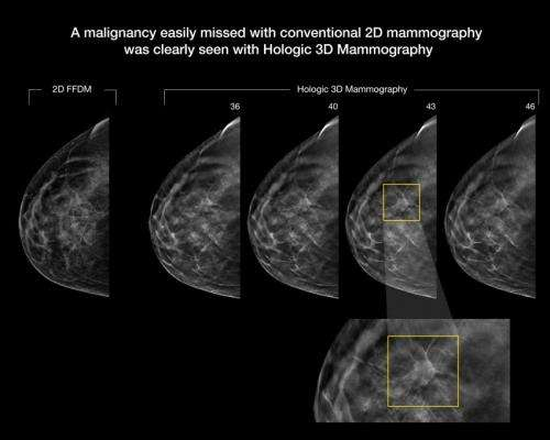 3-D mammography improves cancer detection in dense breasts
