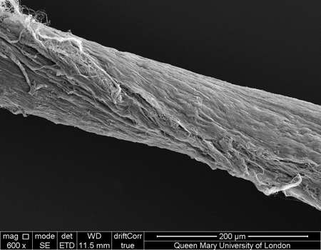 Discovery brings scientists one step closer to understanding tendon injury