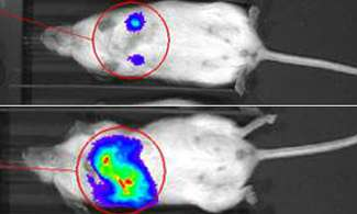 Enzyme controlling metastasis of breast cancer identified
