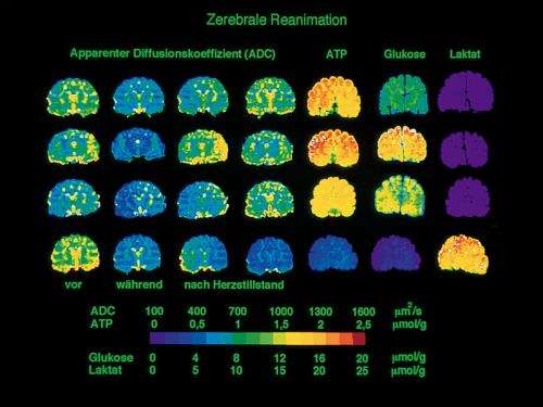 Functional magnetic resonance images reflect input signals of nerve cells