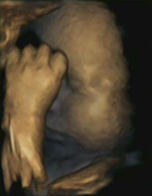 Left-handed fetuses could show effects of maternal stress on unborn babies