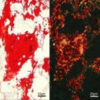 Nano engineering advances bone-forming material