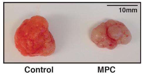 Rewiring cell metabolism slows colorectal cancer growth